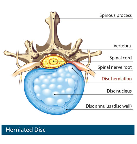 disc problems, degenerative disc disease, herniated disc, Human Body